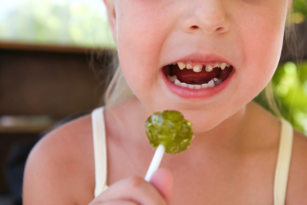 Early Childhood Caries: What Is It?